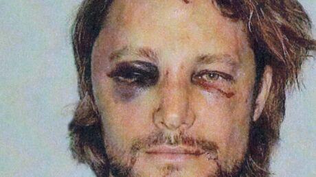 Gabriel Aubry: l'ex d'Halle Berry dévoile son visage tuméfié