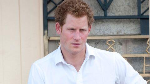 Le Prince Harry va devenir chauve, prédit un spécialiste du cheveu