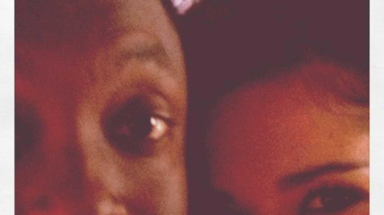 Will.i.am et Cheryl Cole blessés dans un accident de voiture