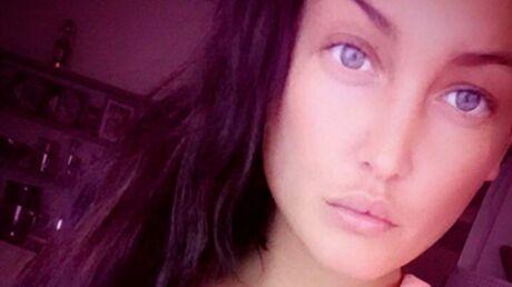 Aurélie Dotremont avoue s'être fait gonfler les lèvres