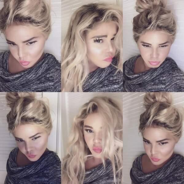 Ces stars qui ont VRAIMENT abusé de la chirurgie esthétique : Lil Kim, encore après