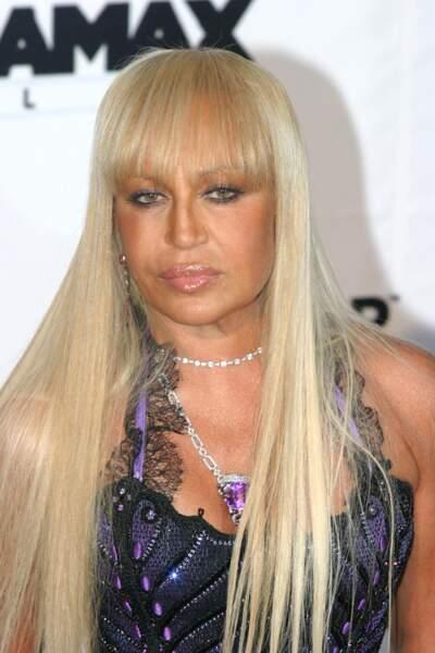 Ces stars qui ont VRAIMENT abusé de la chirurgie esthétique : Donatella Versace avant