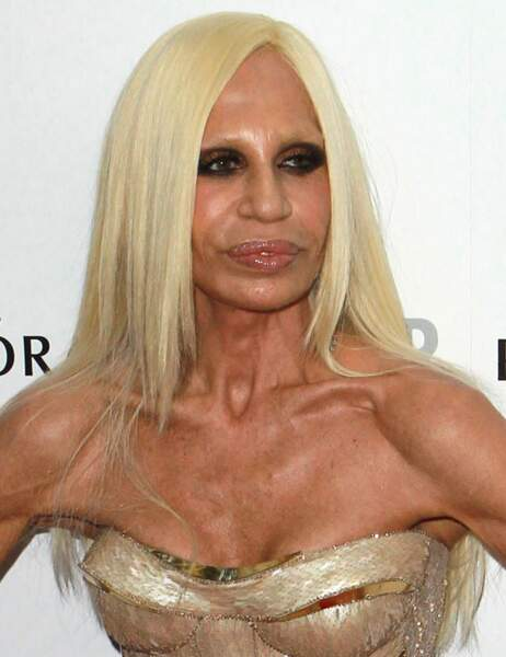 Donatella Versace après