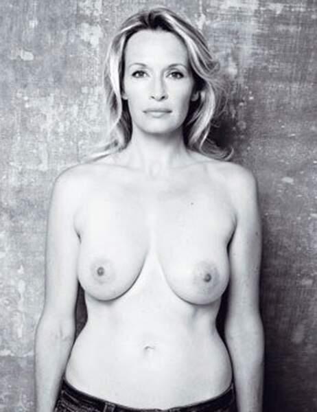 Estelle Lefebure pour le dépistage du cancer du sein