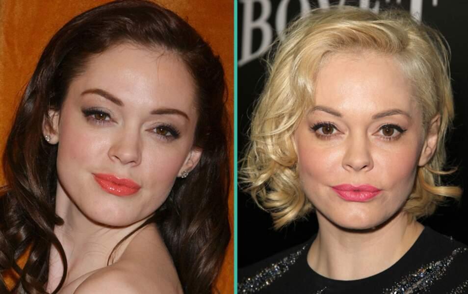 Ces stars qui ont abusé de la chirurgie esthétique