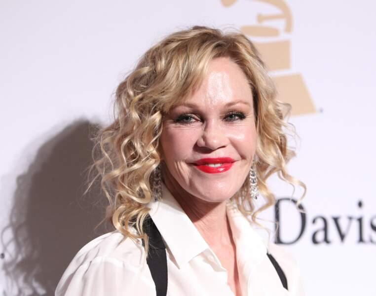Ces stars qui ont VRAIMENT abusé de la chirurgie esthétique : Melanie Griffith après