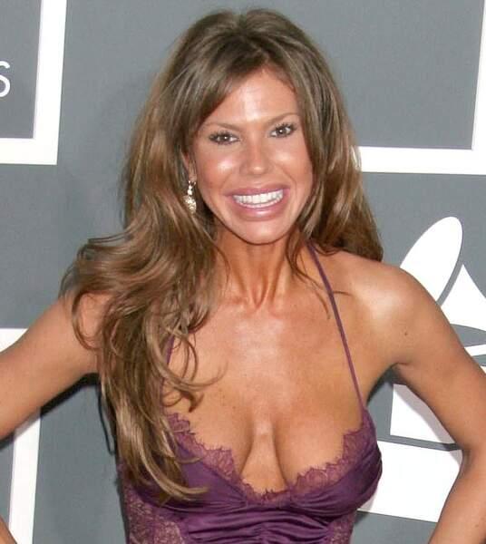 Ces stars qui ont VRAIMENT abusé de la chirurgie esthétique : Nikki Cox après