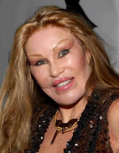 Ces stars qui ont VRAIMENT abusé de la chirurgie esthétique : Jocelyne Wildenstein après