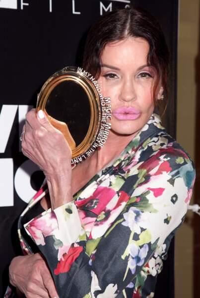 Ces stars qui ont VRAIMENT abusé de la chirurgie esthétique : Janice Dickinson après