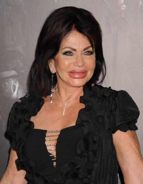 Ces stars qui ont VRAIMENT abusé de la chirurgie esthétique : Jackie Stallone après