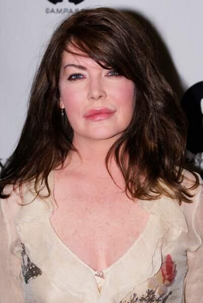 Ces stars qui ont VRAIMENT abusé de la chirurgie esthétique : Lara Flynn Boyle après